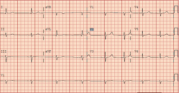 Fig-2-drug-shortage-ECG