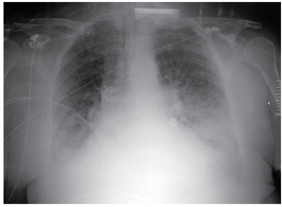 desat-chest-x-ray