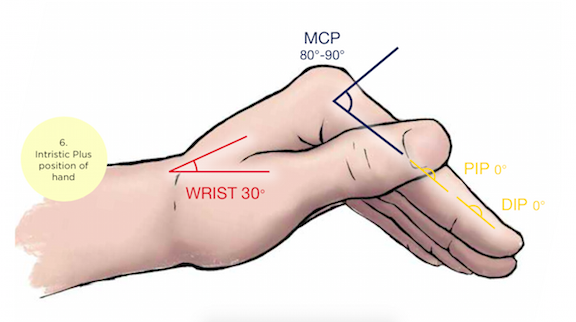 Distal Radius Fractures Reducing The Confusion Emergency