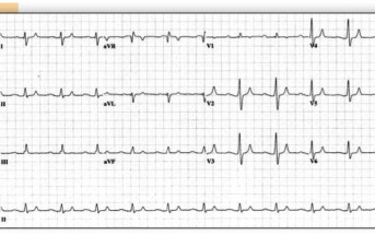 ECG  PEARLS: Beware the Slow Mimics  of Ventricular Tachycardia