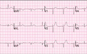 Subtle LAD Occlusion On ECG
