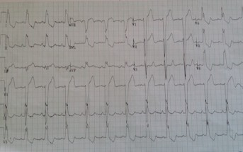 STEMI in the Presence of LBBB