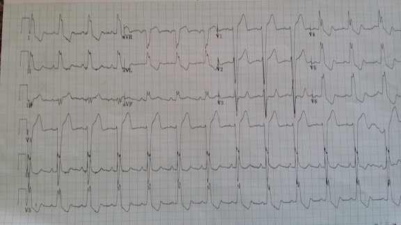 Stemi In The Presence Of Lbbb Emergency Physicians Monthly