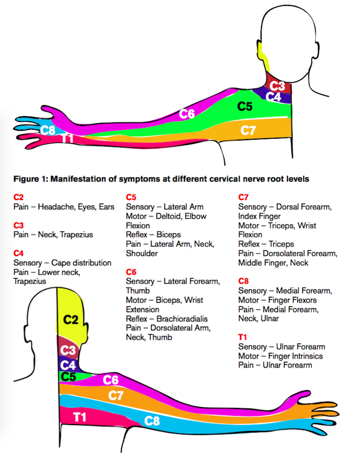 the spurling test and cervical radiculopathy pdf