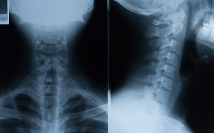 The Plain Cervical Spine X-Ray is Almost Dead - Emergency Physicians ...