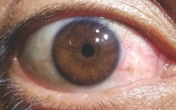Case Study: Can You Name This Eye Problem?