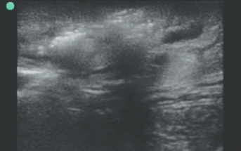 Interactive Ultrasound: Beneath The Surface