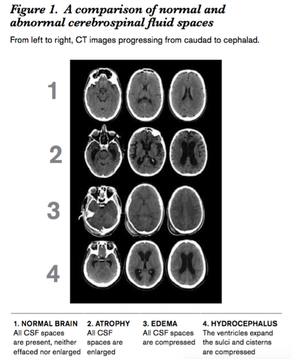 Reading a Head CT When the Pressure is On - Emergency
