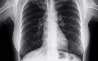 Your Shoulder Will Be Fine, But There's Something in Your Lung