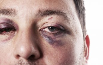 Assault with a steel pole to the face