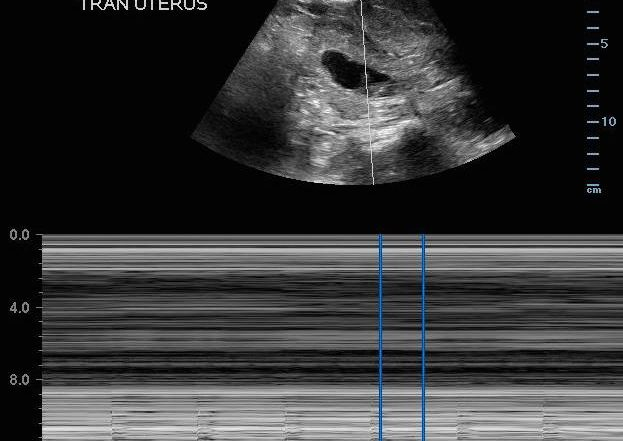 Bedside Ultrasound Evaluation in Right Lower Quadrant Pain