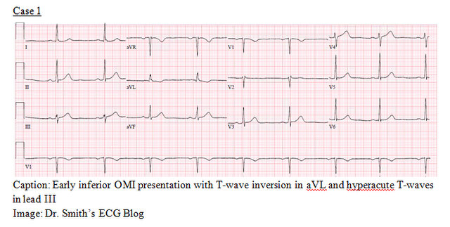EP Monthly EKG case 1