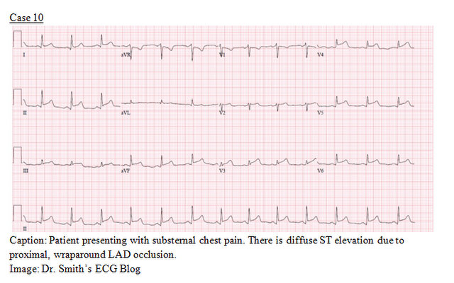 EP Monthly EKG case 10