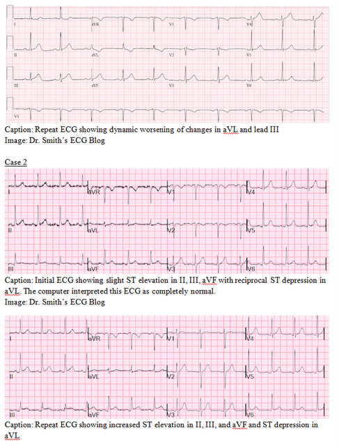 EP Monthly EKG case 2