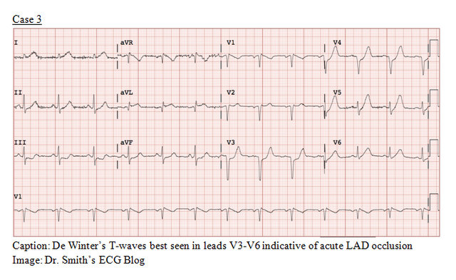 EP Monthly EKG case 3