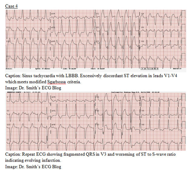 EP Monthly EKG case 4