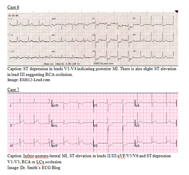 EP Monthly EKG case 6