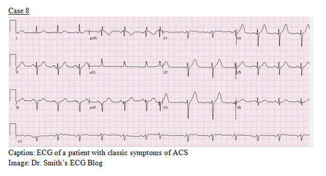 EP Monthly EKG case 8