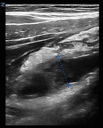 Abdominal pain in elderly - Image 5 - Appendicitis with fat stranding