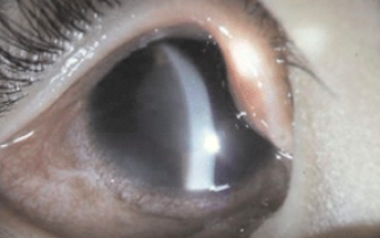 Looking into intraocular eye pressure